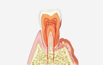 歯の断面(歯周病)のイラスト
