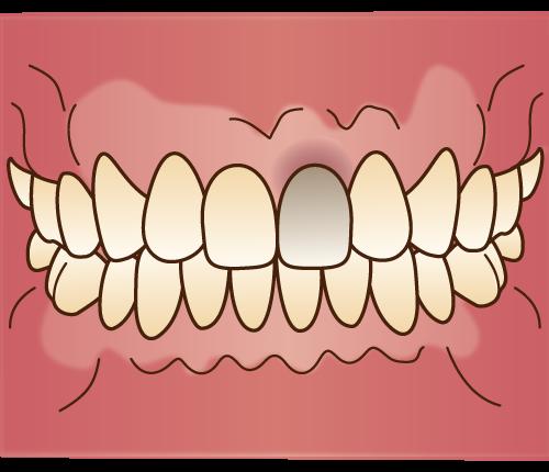 1本だけ歯の色が違う